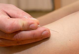 Az akupunktúra biztonságos – a tudományos bizonyítékok szerint