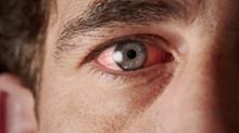 Blefarite é causa frequente de olho vermelho!