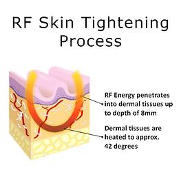 RF Skin.png