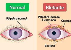blefarite_16609_l.jpg
