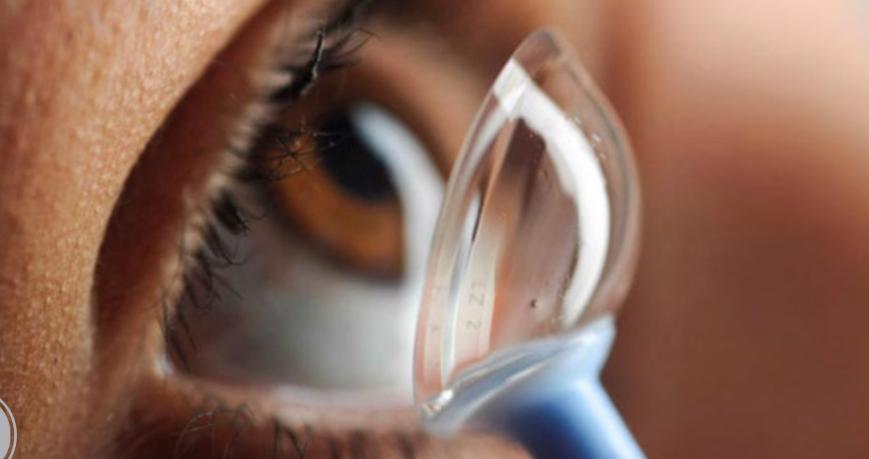 Adaptación de lente escleral