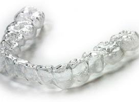 orthosnap-clear-orthodontic-aligner-1.jp