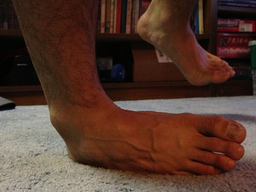 Ankle Pain and Injury