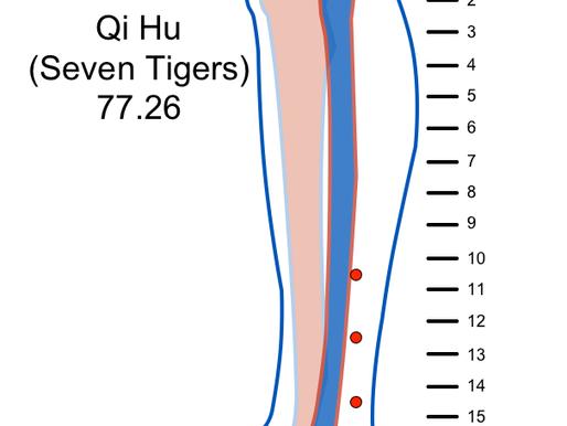 Qi Hu - 77.26