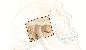 TMJ or Temporomandibular Joint Disorder (TMD)