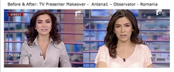 Oana News Presenter Before & After