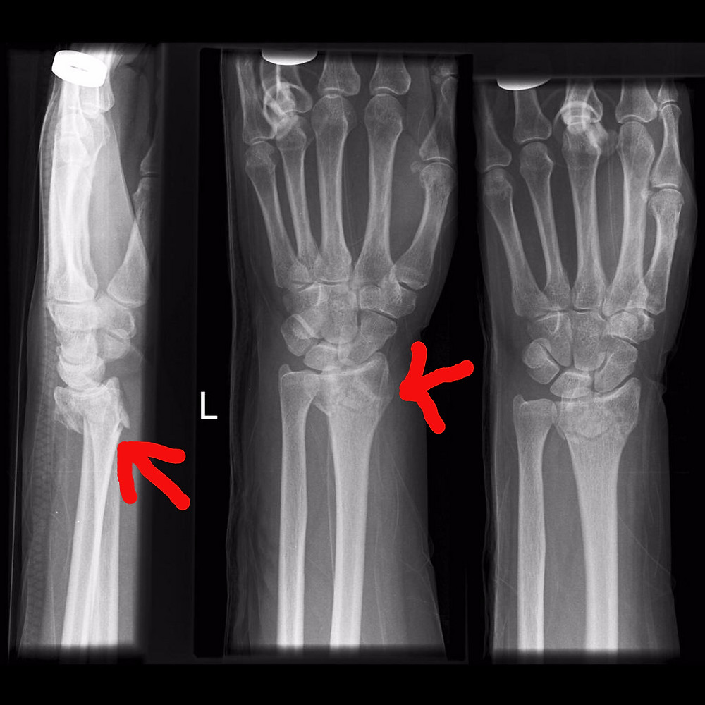 colles-fracture-1_edited.jpg
