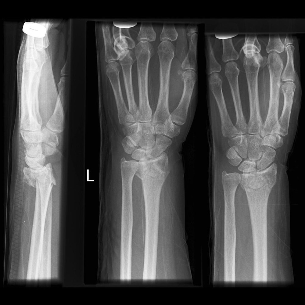 colles-fracture-1.jpg