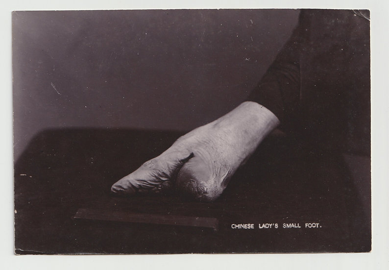 A Chinese lady's small foot, c. 1900