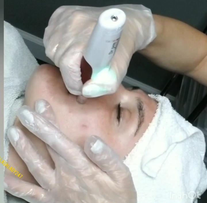 Nano-needling infusion