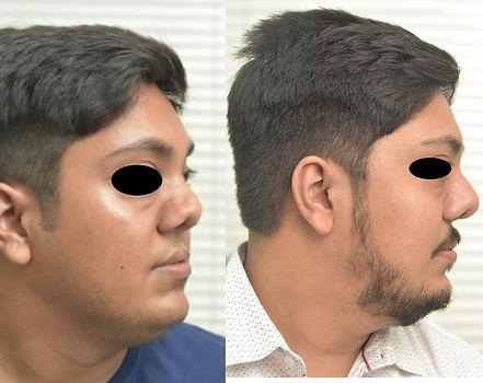 cleft nose6 (2).jpg