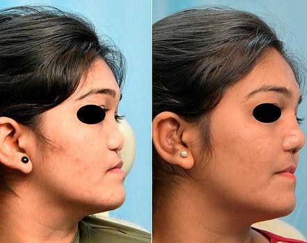 binders nose2.jpg