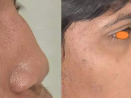 Binder's Syndrome Nose deformity: Rhinoplasty