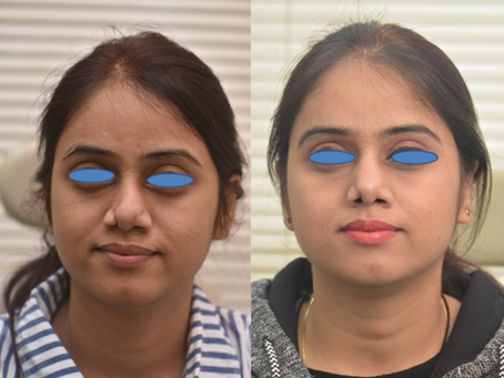 Patient Story: 3rd Revision Rhinoplasty