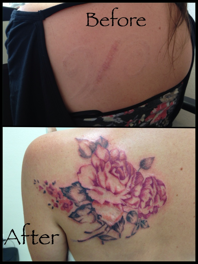 Scar coverup tattoo by Heather Pilapil