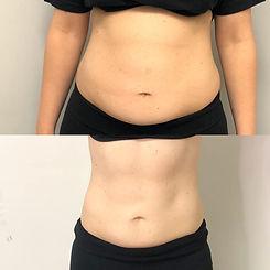 2 slimming sessions -2.jpg