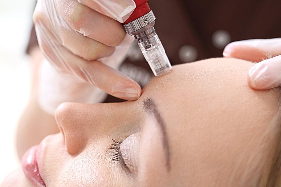 Needle mesotherapy,Microneedle mesothera