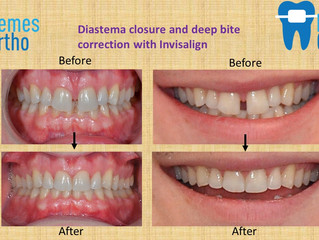 Diastema closure and deep bite correction with Invisalign