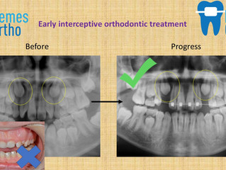 Why your child may need early interceptive orthodontic treatment