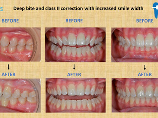 Deep Bite and Class II Correction