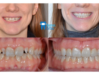 Smile makeover with composite buildups