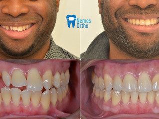 ⭐️Comprehensive orthodontic smile makeover⭐️