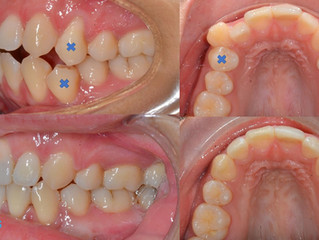 Comprehensive orthodontic treatment with extraction of4️⃣premolars