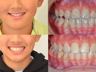 Interceptive orthodontic treatment: Class III Underbite