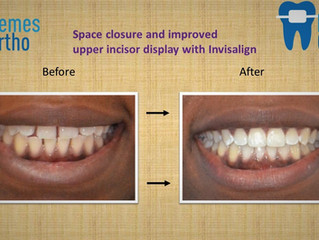 Space closure and improved upper incisor display with Invisalign