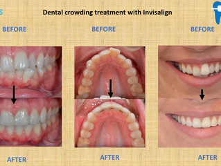 Dental crowding treatment with Invisalign