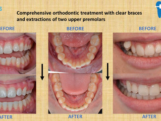 Comprehensive orthodontic treatment with clear braces and extraction of two upper premolars