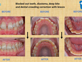 Blocked out teeth, diastema, deep bite & and dental crowding correction with braces