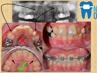 Early Interceptive Orthodontic Treatment