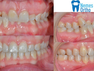 Orthodontic correction of an anterior crossbite and deep overbite