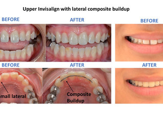 Limited orthodontic smile makeovers