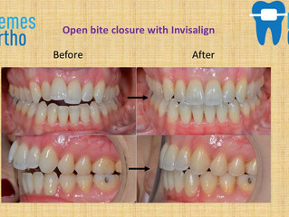 Open bite closure with Invisalign