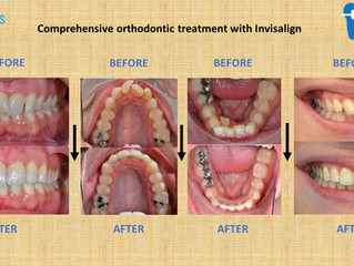 Comprehensive orthodontic treatment with Invisalign