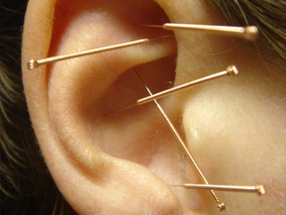 The Mystery Behind Ear Acupuncture