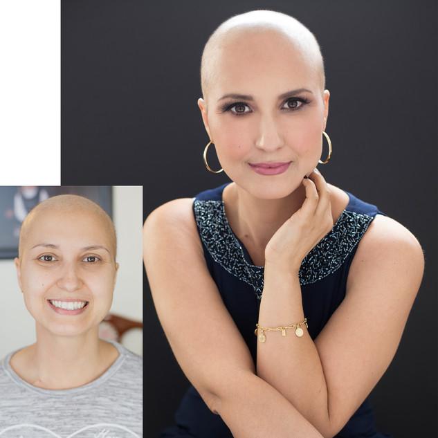 bruna_before&after.jpg