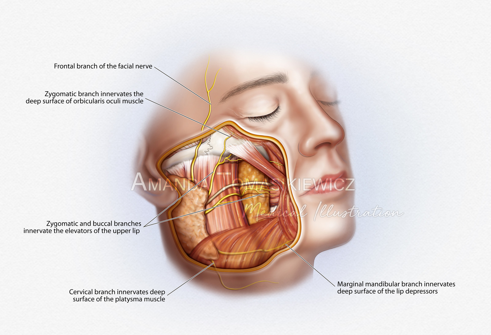 Facial Nerves And Mimetic Muscles