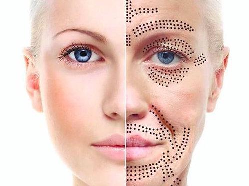 Fibroblast / Plasma Skin Regeneration