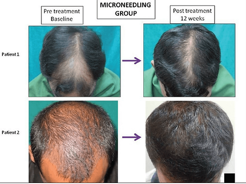 Microneedling for Hairloss & Alopecia