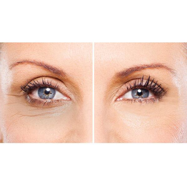 Eye Treatment Add-on