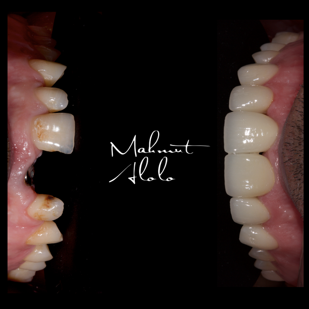 implant and laminate veneers