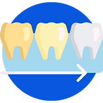 Blanchiment des dents (Teeth Whitening)