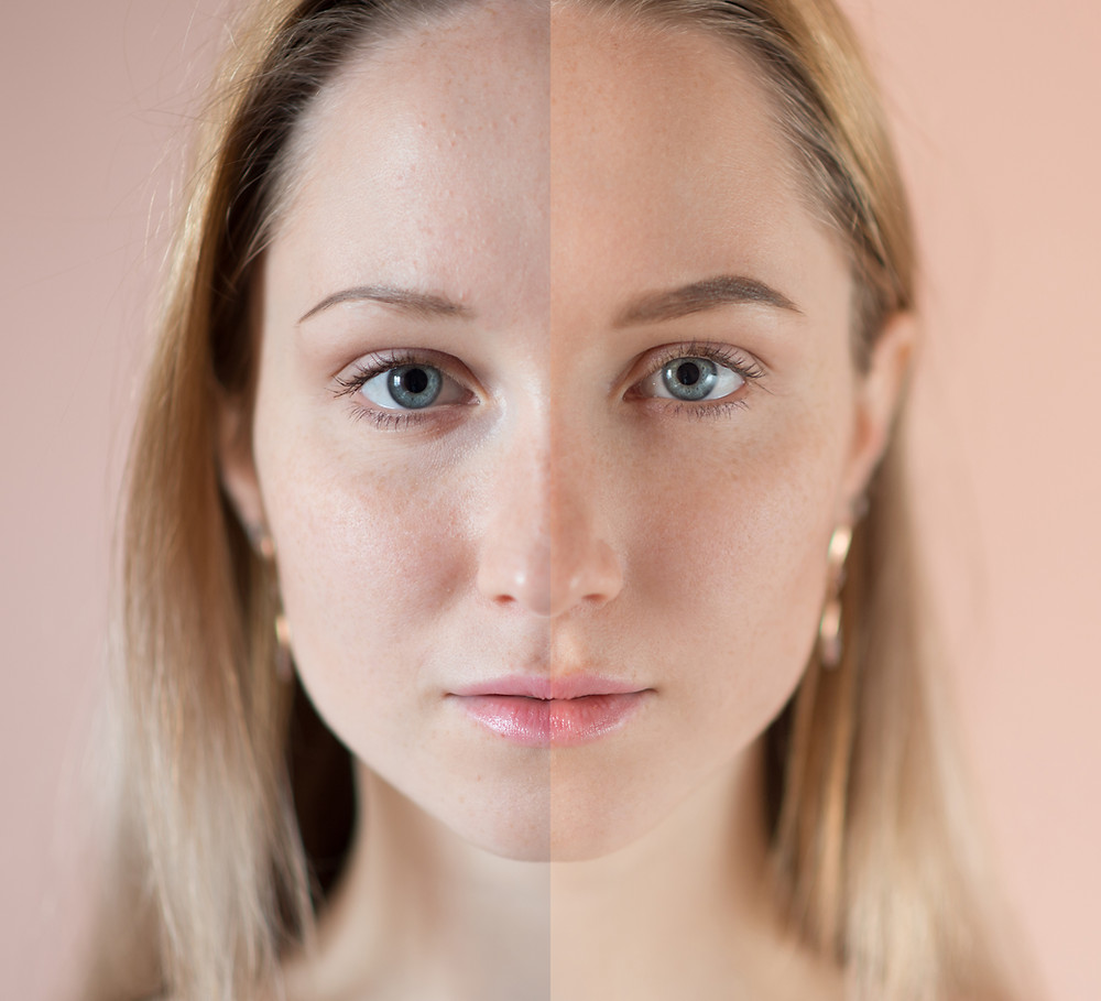 Knowing your skin type and understanding it is a must if you want to have beautiful and radiant skin.