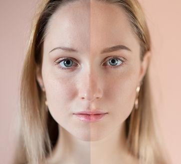 Before and After keratinsko vihanje trepalnic