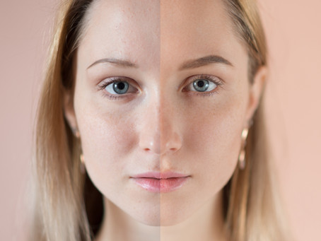 How to Even Out Your Skin Tone Quickly and Effortlessly