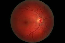 Primera prótesis de retina líquida