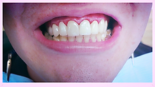 Mark M Bornstein DDS, Cedarhurst dentist, Five towns dentist, cedarhurst cosmetic dentist, five towns cosmetic dentist